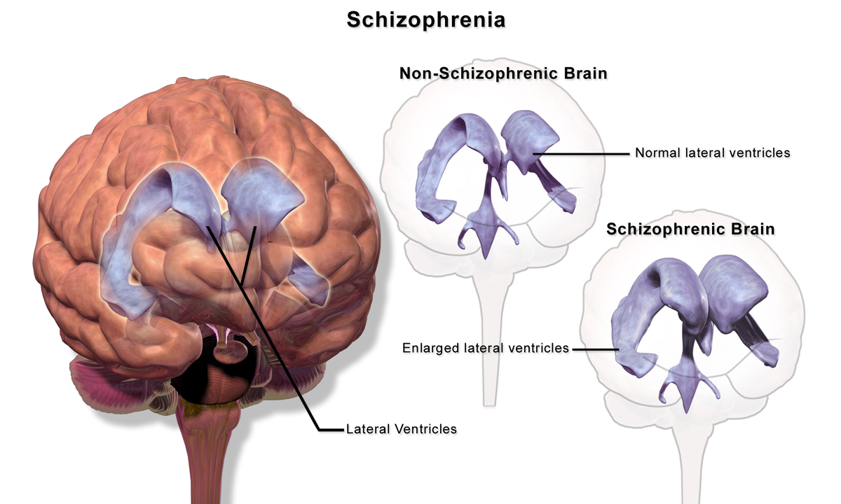 the disease of schizophrenia equally affects men and women It occurs equally in men and women in canada, more than 360,000 people live with the disease, of which 140,000 live in ontario schizophrenia can also impair brain functioning, affecting a person's ability to integrate well into their social environment, ie earn a livelihood and maintain healthy.